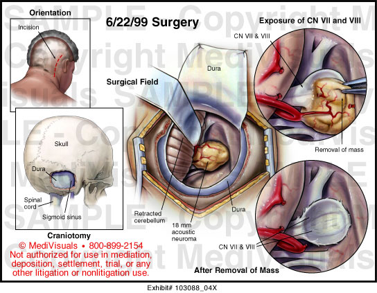 Medivisuals Surgical Excision Of Acoustic Neuroma Medical