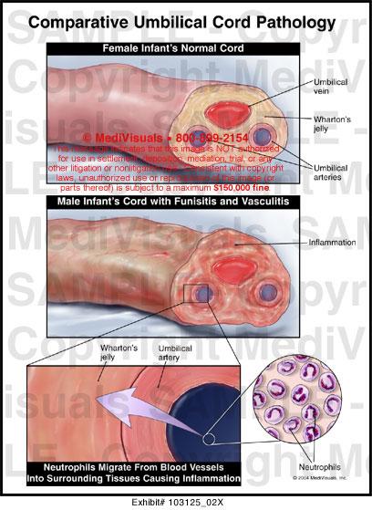 Umbilical Cord Anatomy