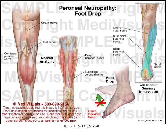 Medivisuals Peroneal Neuropathy Medical Illustration