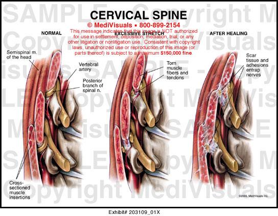 Cervical Spine Muscles Cervical Spine - 203109 01X