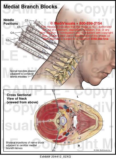 Medial Branch Blocks Medical Illustration