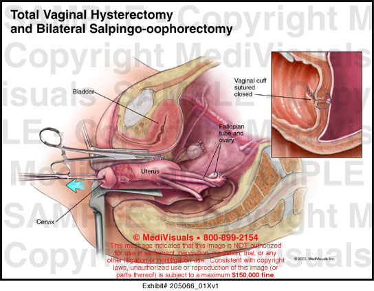 Cuff After vaginal support hysterectomy a