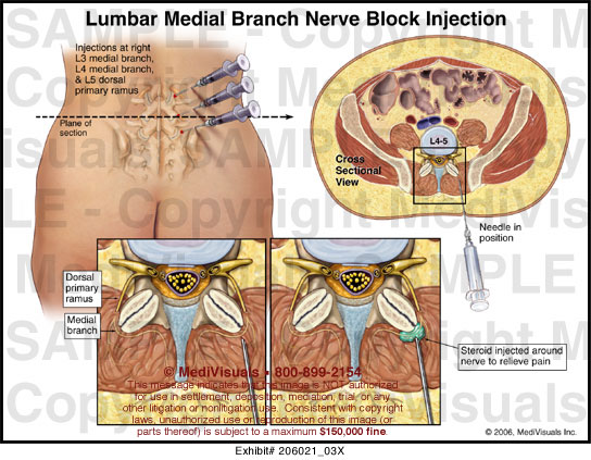 Lumbar Medial Branch Nerve Block Injection Medical Exhibit