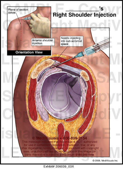 Right Shoulder Injection