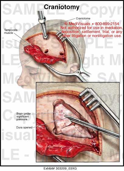 Craniotomy Medical Illustration Medivisuals
