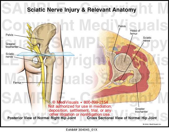 Knee Pain Location Chart
