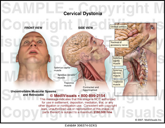 the signs symptoms and treatment of cervical dystonia Botox is covered by insurance for treatment of cervical dystonia  surgery which can significantly improve the symptoms and signs of dystonia as well as.