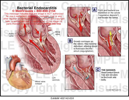 Bacterial Endocarditis...