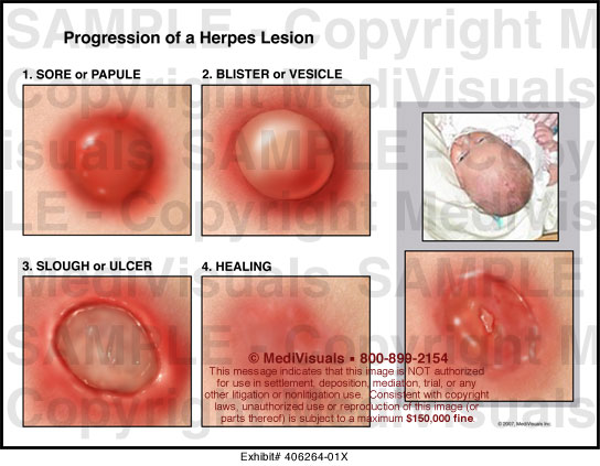 Stages of genital herpes breakout