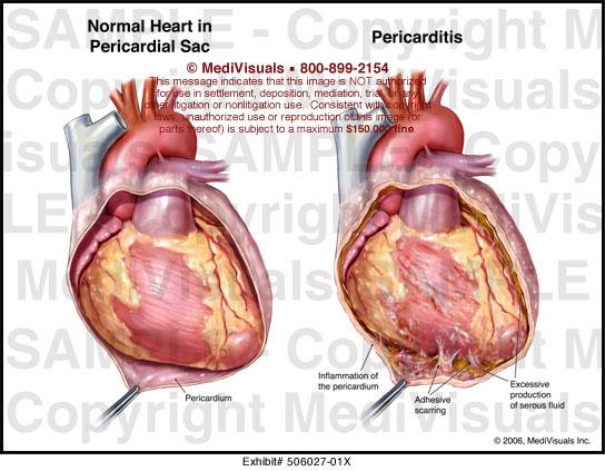 Medivisuals Pericarditis Medical Illustration