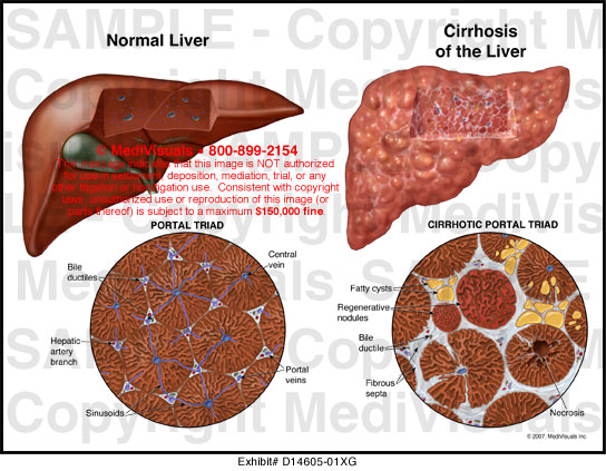 liver cirrhosis research paper
