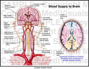 Blood Supply To Brain 299087 02xg